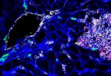 科学家研究了猪中李斯特菌菌株的潜在毒性