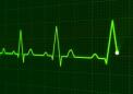 关节炎药物可以治疗与免疫治疗有关的心脏并发症