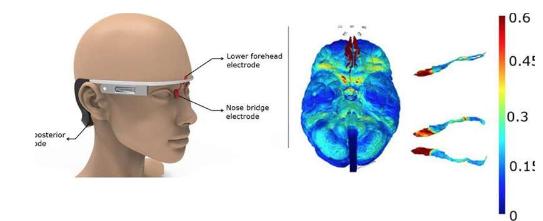 穿戴式电刺激器可治疗早老性痴呆