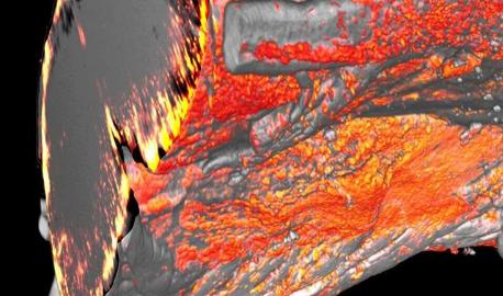 胆固醇回收支持髓磷脂修复
