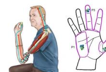 即使经过长期暴露仿生触摸也不会重映射大脑