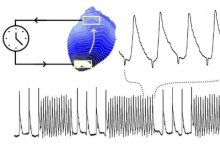 用光控制心脏波以更好地了解异常快速的心律