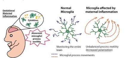 产妇的免疫激活诱导胎儿小胶质细胞运动的持续变化