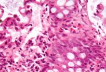 研究发现,多人群风险评分可以改善炎症性肠疾病的风险预测