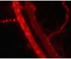 低强度脉冲超声结合微泡可能会增强化疗的效果