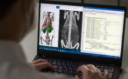 自我学习算法分析医学影像数据
