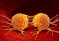 研究人员发现破碎的染色体如何使癌细胞更具攻击性