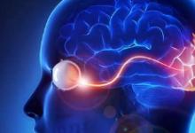 研究发现阿尔茨海默氏病斑块的发育阶段