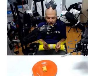 四肢瘫痪患者使用大脑信号为自己提供两个高级义肢